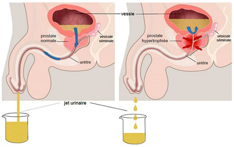 простатит лечение сперма